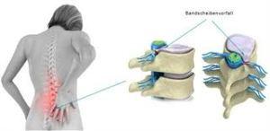 Skiveprolaps rygg