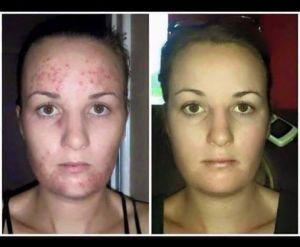 Før og etter bruk av cleanser og serum
